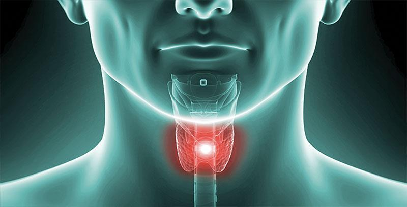 thyroid cancer caces